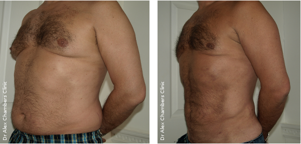 Before and After Vaser Liposuction Photos for the Abdomen