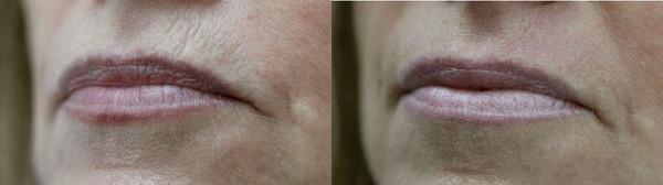 Jet Therapy for Skin Rejuvenation Before and After Photos