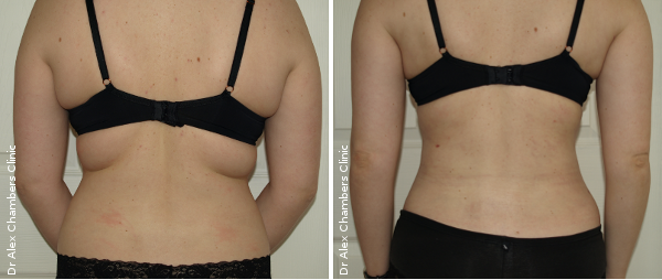 Before and After Photos of Vaser Lipo on Young Woman's Flanks (Removal of Banana Folds)