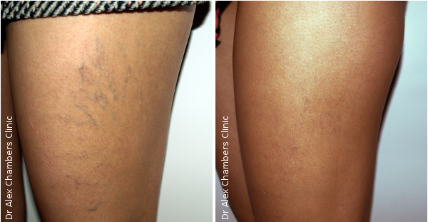 Vein Removal Sclerotherapy