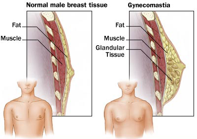 gynecomastia-diagram