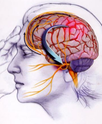 Muscle Relaxing Injections for the Treatment of Migraines