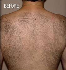 Hair_Removal_Before