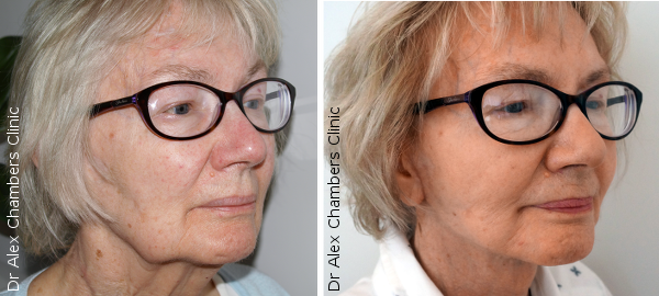 Mini Facelift Patient Semi Profile Before and After Photos