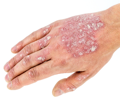 Psoriasis Hand Fingers and Nails