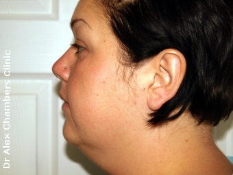 Before Photo of Mini Facelift and Vaser Liposuction