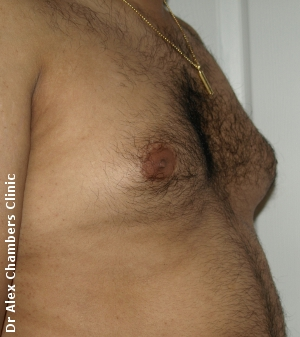 Gynecomastia-before