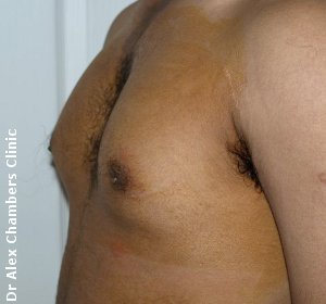 Gynecomastia2-before