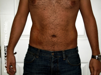 Love Handles Treated with Vaser Liposuction After Photo