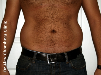 Love Handles to be Treated by Vaser Lipo Before Photo