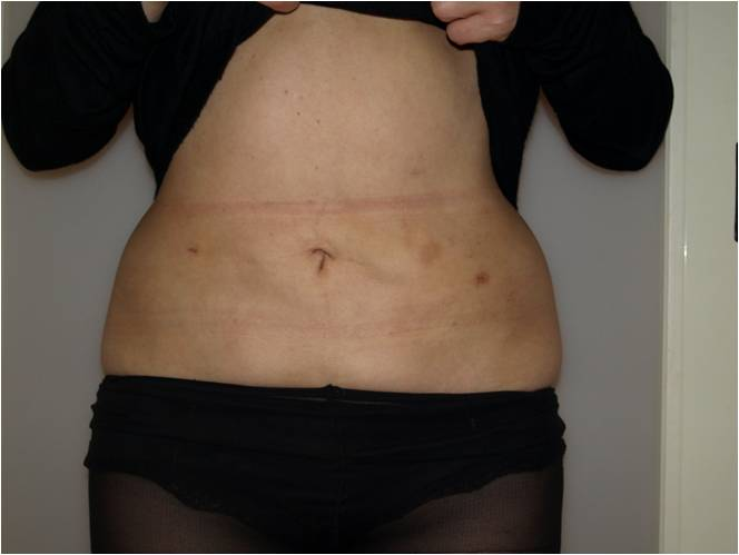 belly-scar-after