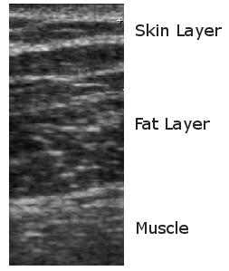ultrasound-scan-skin-layers