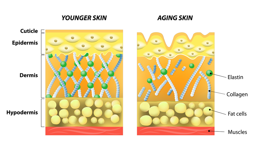 Effects of Aging on the Skin