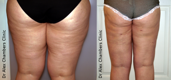 Lipoedema Treatment on Legs Before and After Photos