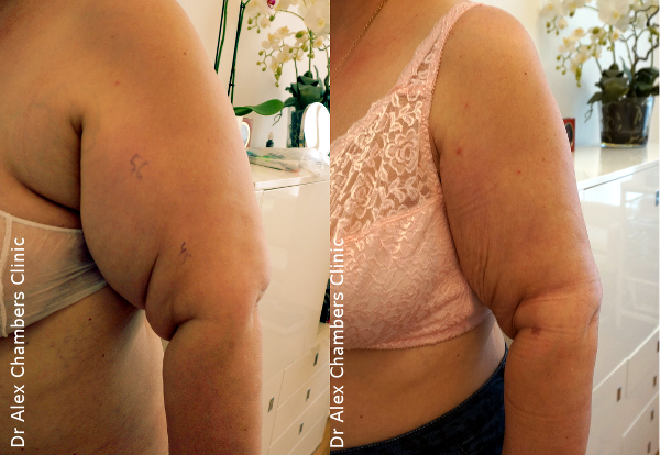Lipoedema Treatment to Arms Before and After Photos