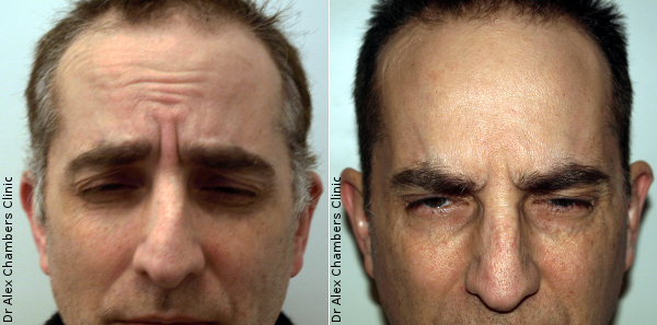 Wrinkle Reducing Injections Forehead Before and After