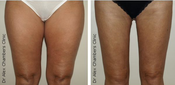 VaserThighs Front Before and After