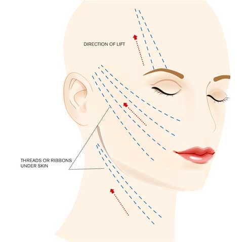 Thread Lift | Mini Facelift | How it Works