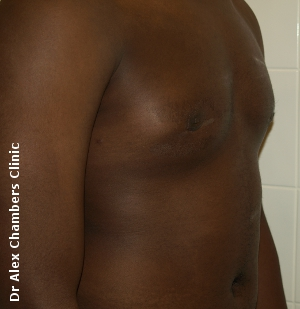 gynecomastia after surgery photo