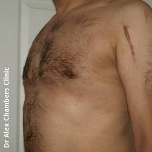 gynecomastia after treatment