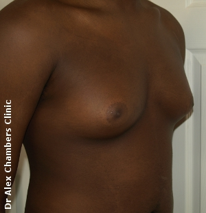 gynecomastia before surgery photo