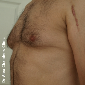 gynecomastia before treatment